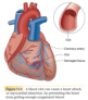 Cardiovascular disease covers several common afflictions