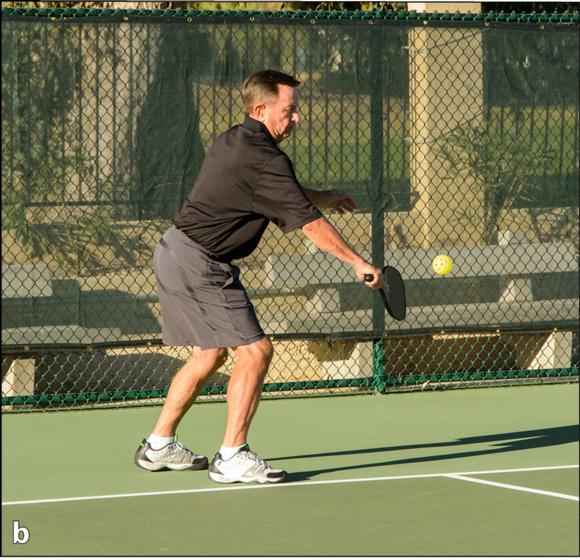 pickleball fundamentals  forehand and backhand serves
