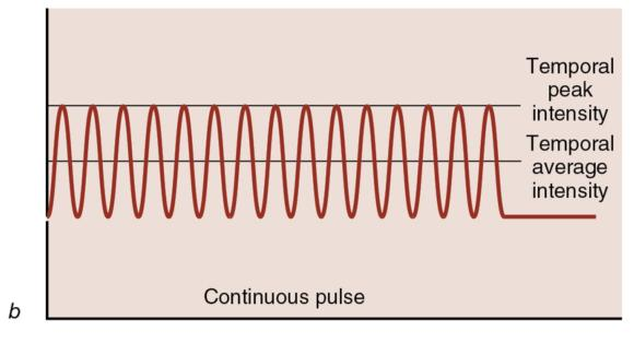 Figure 12.6 In pulsed ultrasound, energy is generated only during the